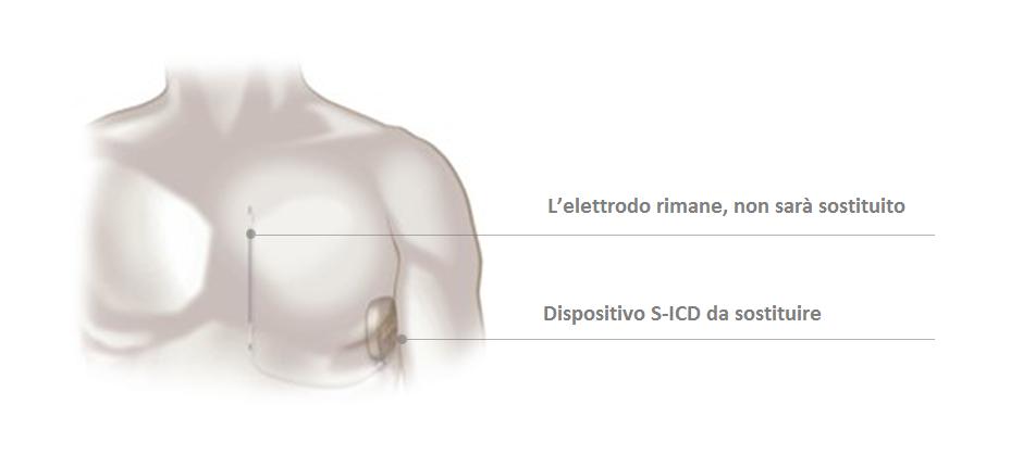 sostituzione del dispositivo s-icd necessaria